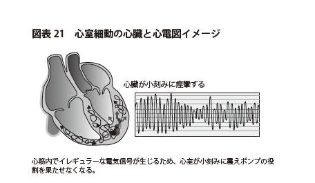 図表21 心室細動の心臓と心電図イメージ