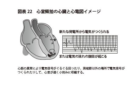 図表22 心室頻拍の心臓と心電図イメージ
